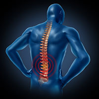 The Denver workers' compensation lawyers at the Bisset Law Firm are skilled at helping workers with back and spinal cord injuries obtain benefits.